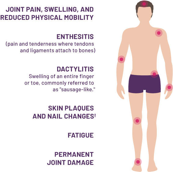 "Joint pain, swelling, and reduced physical mobility, enthesitis (pain and tenderness where tendons and ligaments attach to bones), dactylitis (swelling of an entire finger or toe, commonly referred to as ""sausage-like""), skin plaques and nail changes, fatigue, permanent joint damage"