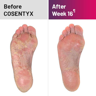 Plaque psoriasis treatment on bottom of feet before and after COSENTYX