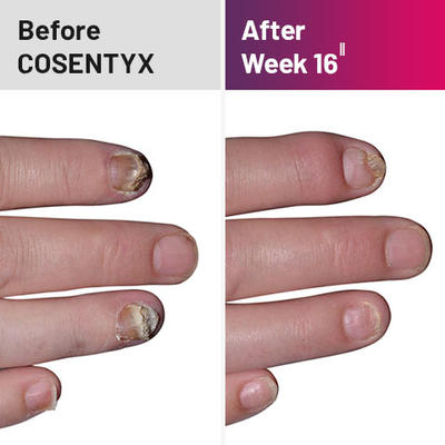 Plaque psoriasis treatment on nails before and after COSENTYX