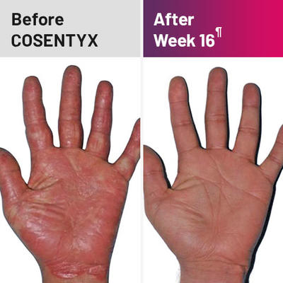 Plaque psoriasis treatment on palms before and after COSENTYX