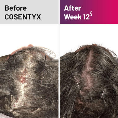 Plaque psoriasis treatment on scalp before and after COSENTYX